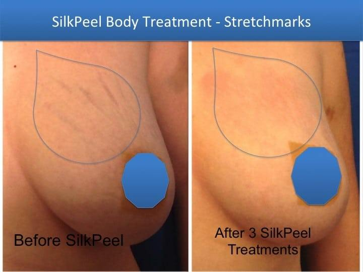 Breast Stretch Mark Spa Treatments
