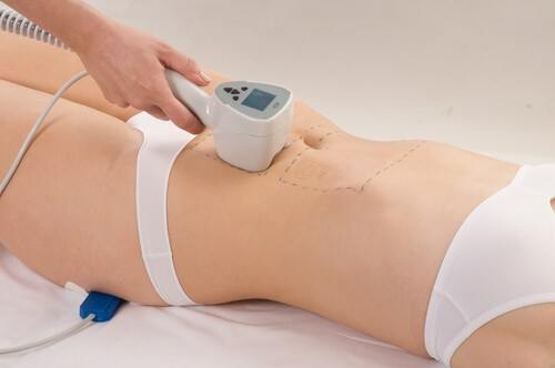 Laser Stretch Marks Treatments