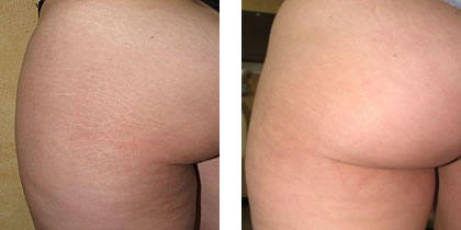 Stretch Marks Before And After Stretch Marks on Butt Before