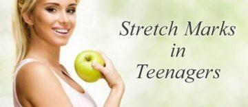 Teen Stretch Marks