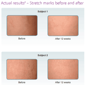 Mederma Stretch Mark Cream Review Does It Work Well