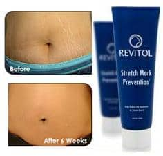 Revitol-Stretch-Mark-Solution