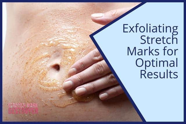 Exfoliating Stretch Marks for Optimal Results | Can it Help?