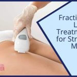 Using Fractional Laser for Stretch Marks Removal