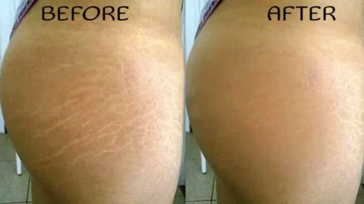 How to Get Rid of Old Stretch Marks with Ease