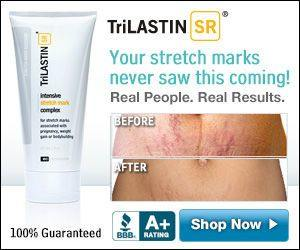 TriLastin SR Stretch Mark Cream