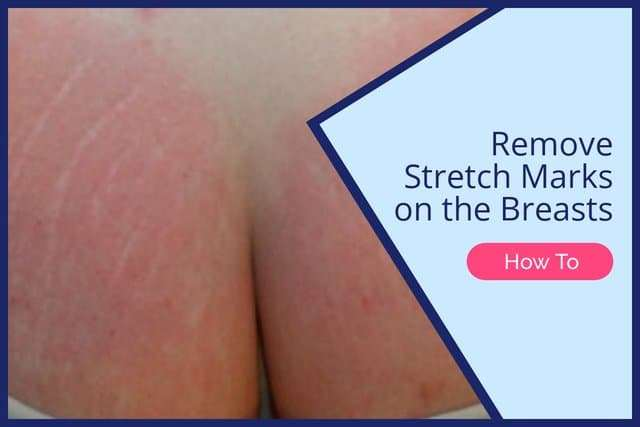 Remove Stretch Marks on the Breasts