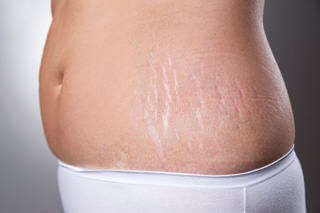 Stretch-Marks-on-Sides